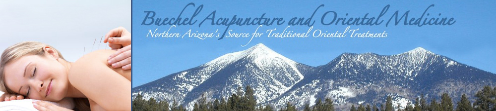 Buechel Acupuncture in Flagstaff, AZ